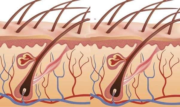 Гидраденит под мышкой: симптомы, причины и лечение