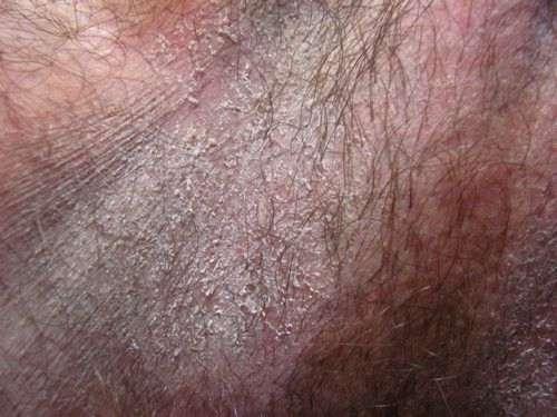 Чем лечить опрелость в паху у взрослого: мазь или крем, лучшее ...