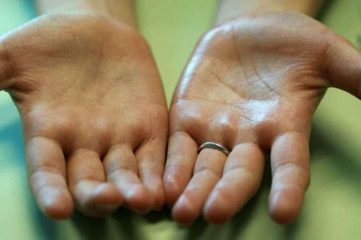 потные руки
