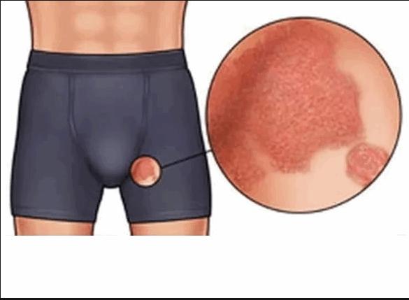 раздражение в паху между ногами у мужчин