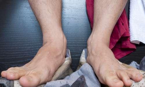 ноги потеют