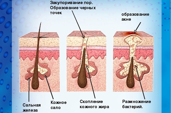 сальная железа на лице