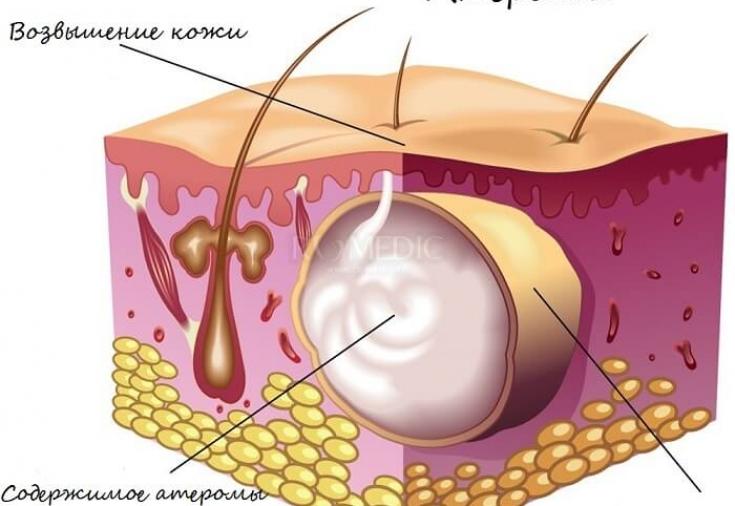Как лечить воспаление сальных желез в паху