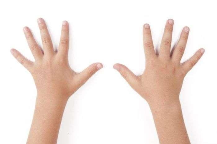 потливость рук