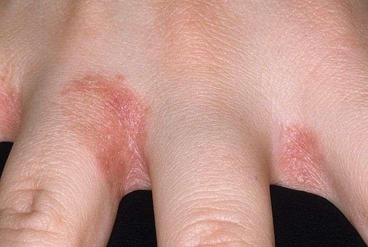 Эффективные методы лечения опрелостей между пальцами рук