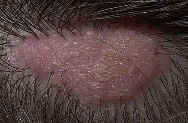 внешний вид невуса сальных желез